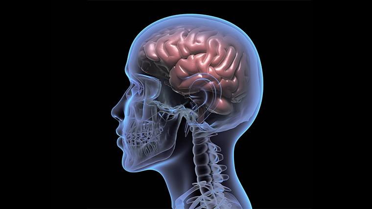 What is Brain Brain Injury Stroke Neofect Rapael Home